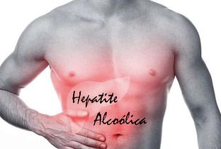 Hepatite alcóolica